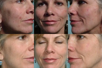 CSID: Fumatul intretine si agraveaza acneea