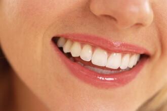 Deficitul de vitamina D poate agrava problemele dentare. Cum sa va mentineti dintii sanatosi in sezonul rece
