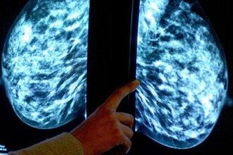 Adio operatii! Tumorile cancerigene distruse prin inghetare!