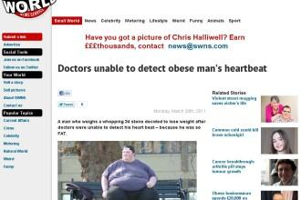 Medicii nu i-au putut localiza inima pentru ca este prea gras