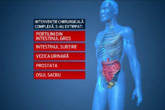 Operatie extrema, incheiata cu succes, in Romania. 9 chirurgi au operat un tanar ale carui organe erau invadate de cancer
