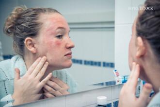 Produsul folosit de majoritatea femeilor care produce cele mai severe alergii. Testele sunt decontate si usor de aplicat