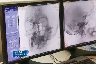 Accidentele vasculare cerebrale, care omoara un pacient din doi, sunt agravate de fumat. RMN-ul, prima metoda de preventie