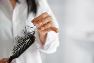 Afecțiunea de care suferă o tânără căreia i-a căzut tot părul la doar 19 ani. FOTO