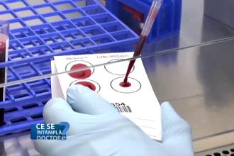 Analiza de sânge care trebuie făcută o dată pe an. Informațiile vitale oferite de hemoleucogramă