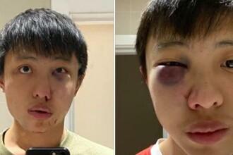 """Atac rasist asupra unui student din Singapore. """"Nu vreau coronavirusul tău la mine în țară"""""""