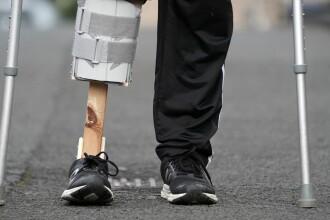 Soția i-a făcut un picior de lemn, pentru că n-a putut ajunge la spital din cauza pandemiei de coronavirus