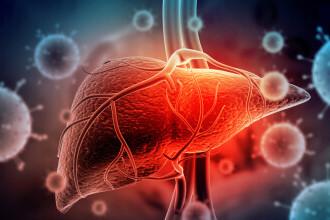 CSID. Ce este și cum apare steatoza hepatică. Alimentul care ne ajută să o combatem
