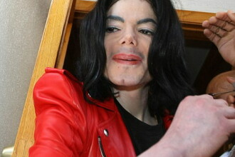 Michael Jackson isi amana concertele! Se opereaza de cancer de piele!