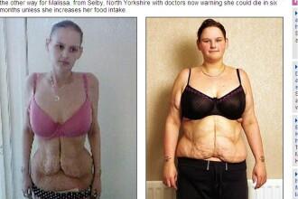 A fost cea mai grasa fata din Anglia. Acum e ANOREXICA. Fotografii socante