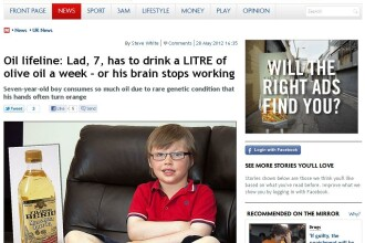 Creierul lui moare daca nu bea 1l de ulei saptamanal.Copilul cu o boala pe care o au doar 300 oameni
