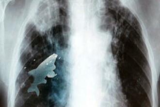 Pestele viu din plamanul unui baiat din India. Chirurgul sau:
