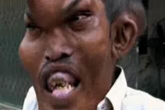 VIDEO. Povestea omului desfigurat de o boala rara.