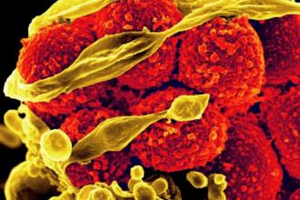 Legatura dintre vitamine si bacteriile din organism. Un academician explica de ce muraturile nu au niciodata acelasi gust