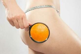 Ce este in realitate celulita: 5 trucuri care te scapa pentru totdeauna de aspectul de coaja de portocala