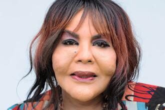 A ramas desfigurata, dupa ce i-a fost injectat ciment in fata, iar doctorii au refuzat sa o opereze: cum arata chipul femeii