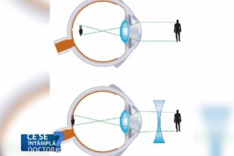 Vizita la oftalmolog, obligatorie o dată pe an până la 20 de ani