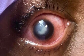 """Avertismentul unui oftalmolog legat de un obicei greșit, des întâlnit: """"Riscați orbirea permanentă"""""""