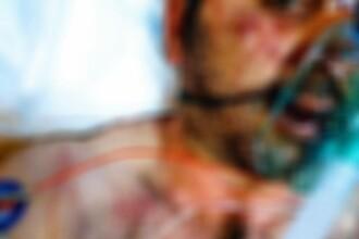 Mesajul unui italian desfigurat de 3 țigani, care l-au bătut cu pumnii și picioarele. FOTO