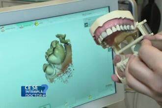 La ce trebuie să fiţi atenţi dacă optați pentru fațetele dentare. Sfaturile medicilor