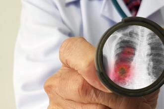 Industria farmaceutică s-a unit în lupta contra COVID-19. Se lucrează la 145 de tratamente