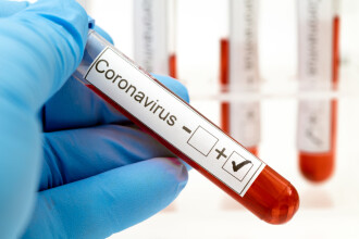 Pasagerii unui avion spre Grecia s-au imbarcat sanatosi si au coborat infectati cu coronavirus