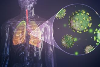 Verdict îngrijorător dat de experți. Ce se întâmplă cu pacienții vindecați de coronavirus