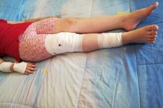 Daune de 17.000 €, după ce o fetiță din Mediaș a fost mușcată de un câine comunitar. De spaimă, mama ei a pierdut sarcina