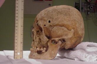 Alerta la politia din Buzau dupa descoperirea unui craniu uman