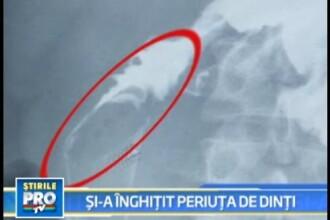 A inghitit o periuta de dinti de 17 centimetri, care a ajuns in stomac!