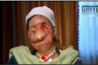 VIDEO SOCANT! Mutilata pe viata de un cimpanzeu nervos!