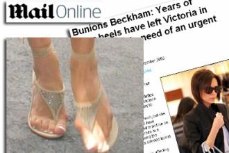 Uite cum i-au distrus tocurile picioarele Victoriei Beckham!