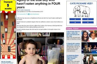 Copilul caruia ii e frica de alimente! E hranit prin buric, de 4 ani !