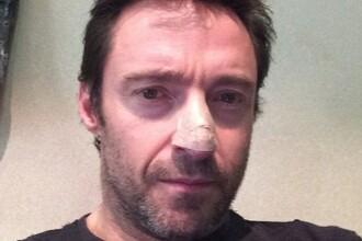 Actorul Hugh Jackman a anuntat ca a fost tratat pentru cancer de piele