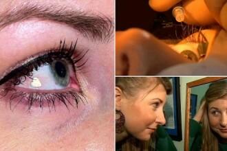 Femeia din SUA care si-a facut un implant ocular cu platina in forma de inima. VIDEO