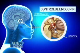 Cand se impune o programare la neurolog. Si persoanele foarte tinere pot fi afectate de o tumora benigna