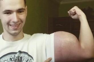 S-a injectat cu o substanță controversată pentru a avea bicepși de 60 de cm
