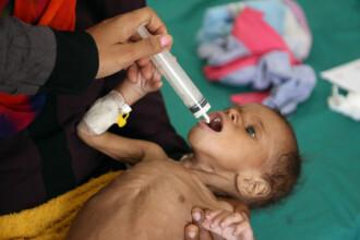 85.000 de copii au murit de foamete în timpul crizei din Yemen