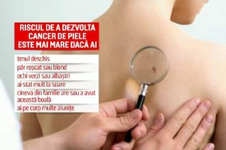Tot mai mulți tineri din România, diagnosticați cu melanom. Cine sunt cei mai expuşi