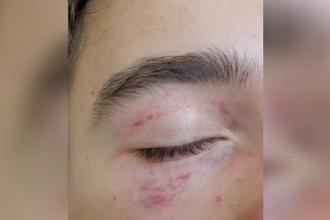 Medic din Timișoara, acuzat că și-a bătut fiul. Băiatul a ajuns la spital plin de vânătăi