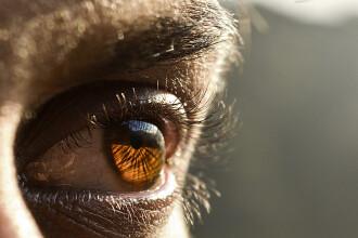 Un bărbat a trăit ani de zile cu un vierme în ochi.