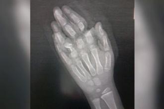 Un copil de 7 ani a ajuns la spital cu degetele amputate într-un accident casnic