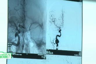 Accidentul vascular cerebral poate fi tratat optim în 4-6 ore. Cum trebuie să procedăm