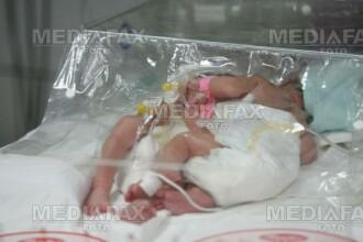 Brasov: Siamezii nascuti in urma unui incest, transferati la Bucuresti