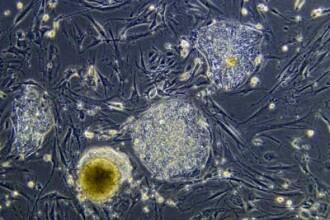 Cercetarea in domeniul celulelor stem primeste sprijinul Casei Albe!