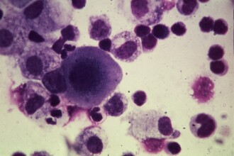 Tratamentul cancerului este blocat de o gena! Medicii au aflat care este