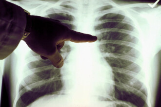 Tomografiile 3D ajuta medicii sa descopere mai repede cancerul pulmonar