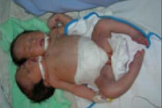 O femeie din Vietnam a nascut un copil cu doua capete si trei maini
