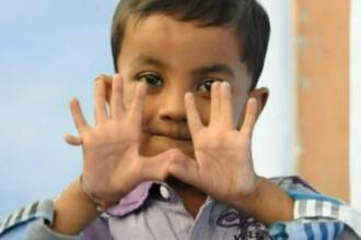 Povestea lui Arpan Saxena, copilul de 4 ani care are 25 de degete. Parintii: