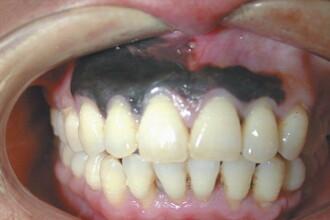 I s-au innegrit gingiile. Boala extrem de rara de care sufera un chinez. FOTO